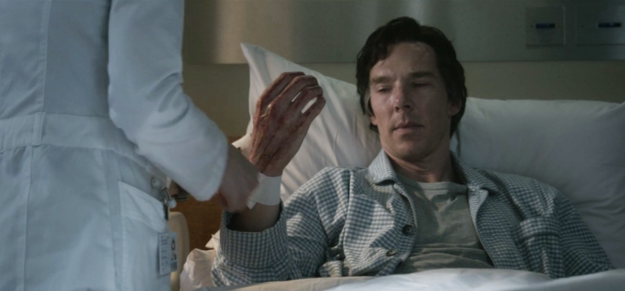 The scars from Doctor Strange's surgery were very visible on his hands when he gave Thanos the Time Stone.